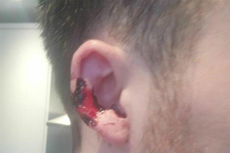Le muerde una oreja por un llamada telefu00f3nica