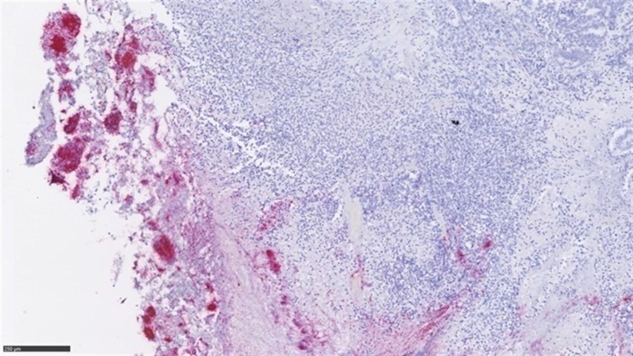 Microbiota metstasis