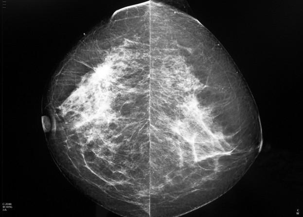 Mamografu00eda 02052018