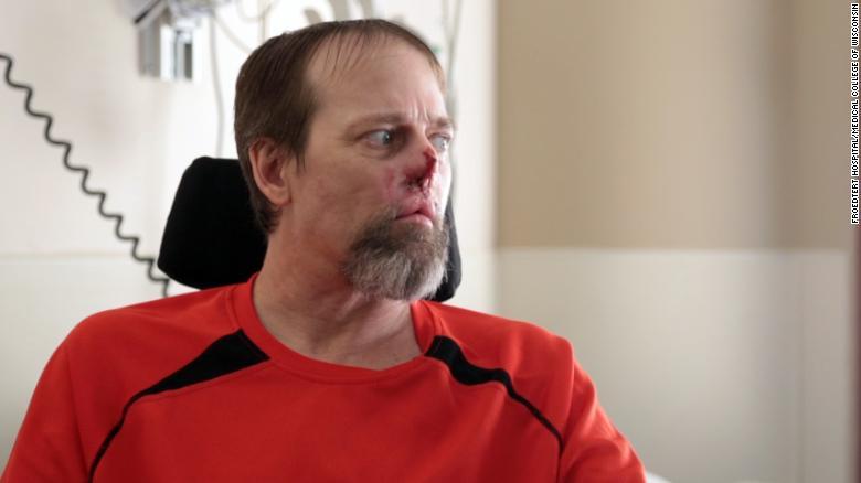 Greg Manteufel sufriu00f3 una infecciu00f3n caninca