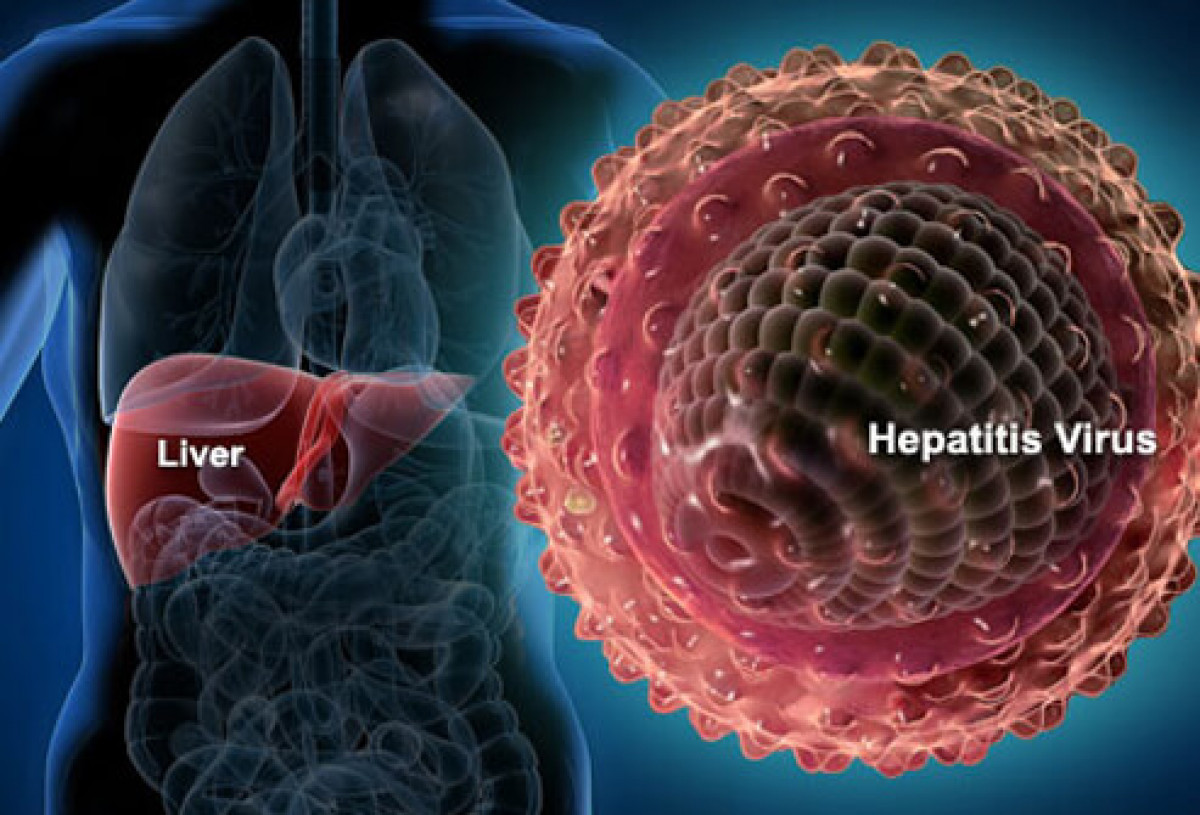 Hepatitiss1liverhepatitisvirus