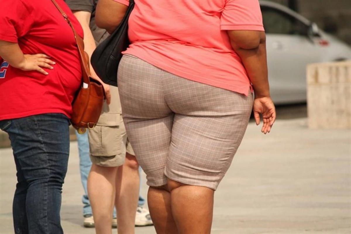 Obesidadmujeres 1